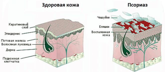 Симптомы и лечение псориаза