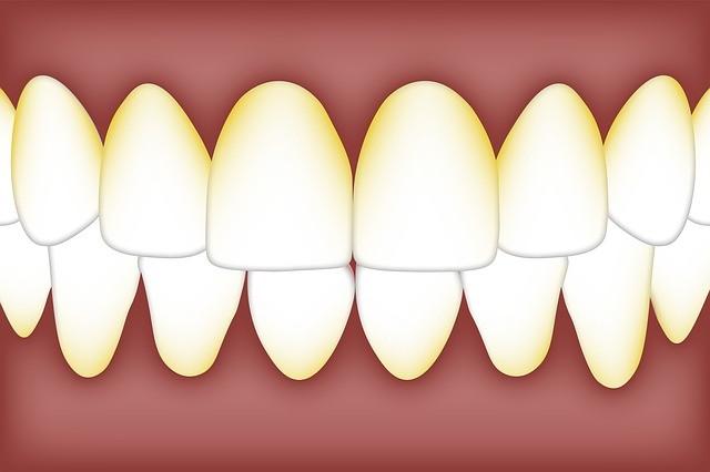 Способы удаления зубного камня